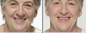 Buying wrinkle creams