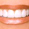 Teeth Whitening by a Cardiff Dentist